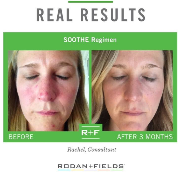 Before and after using Rodan+Fields Soothe regimen for rosacea