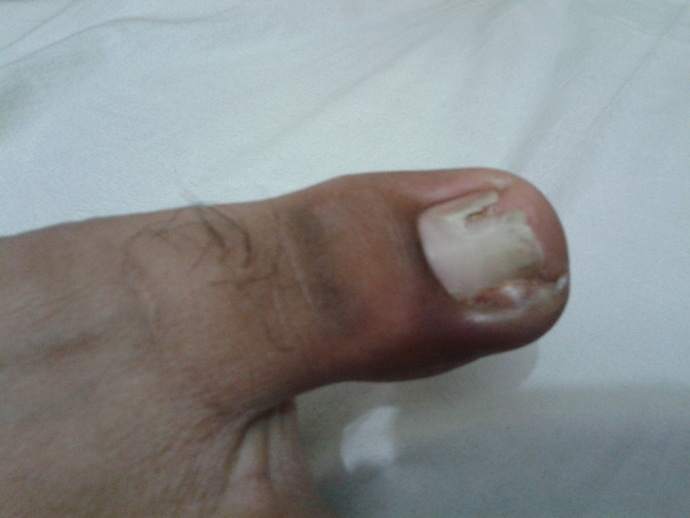 ingrown toe-nail