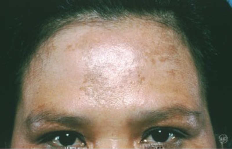 Melasma on forehead