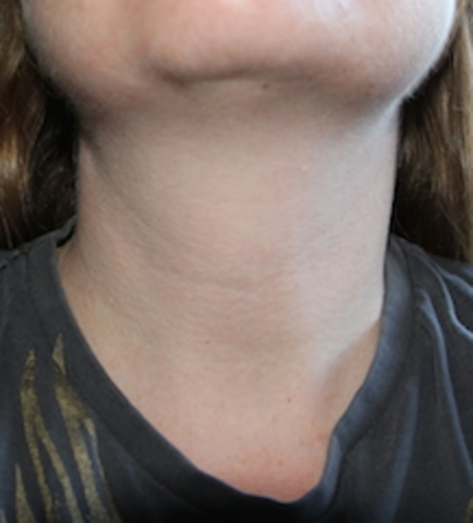 Selina Shapland's throat