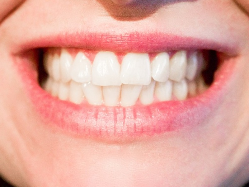 Tooth enamel erosion