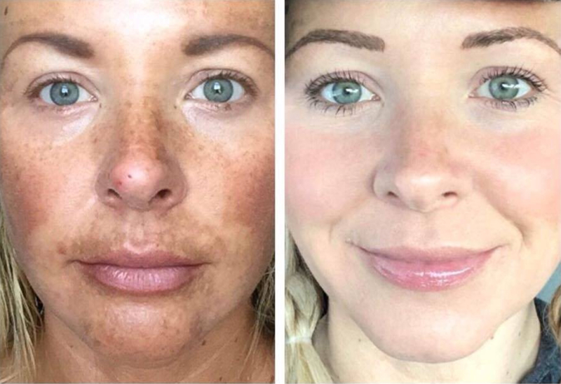 Melasma on forehead  - Melasma - what it is caused by and what you can do about it